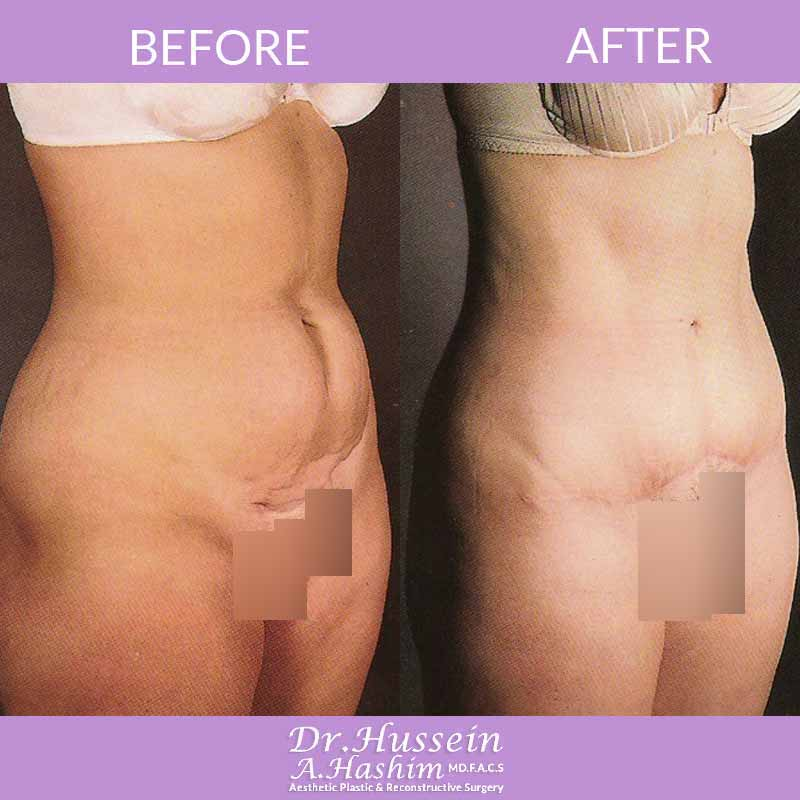image 3 Before after of abdominoplasty Lebanon