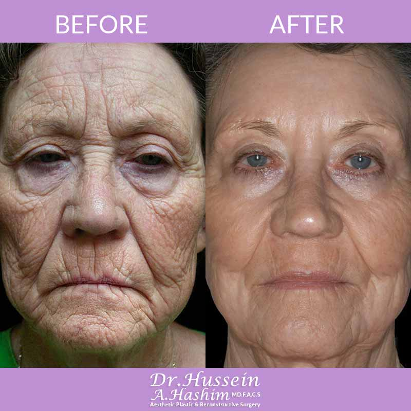image 3 Before after of Facial Beautification Lebanon