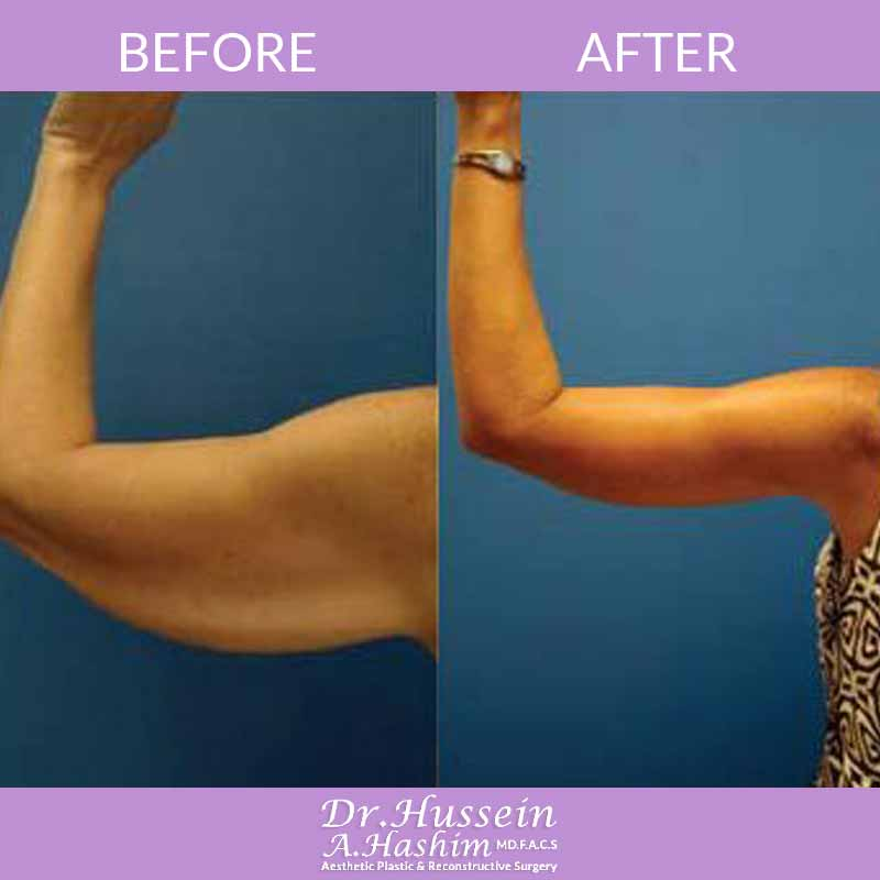 image 1 Before after of arm lift Lebanon