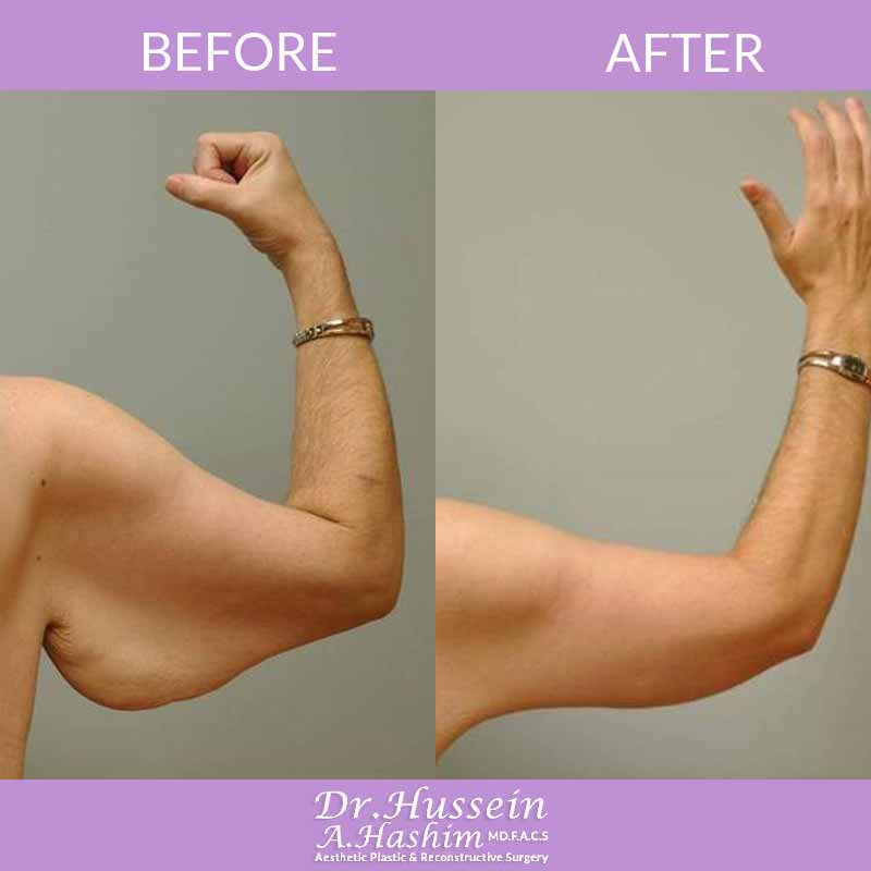 image 3 Before after of arm lift Lebanon
