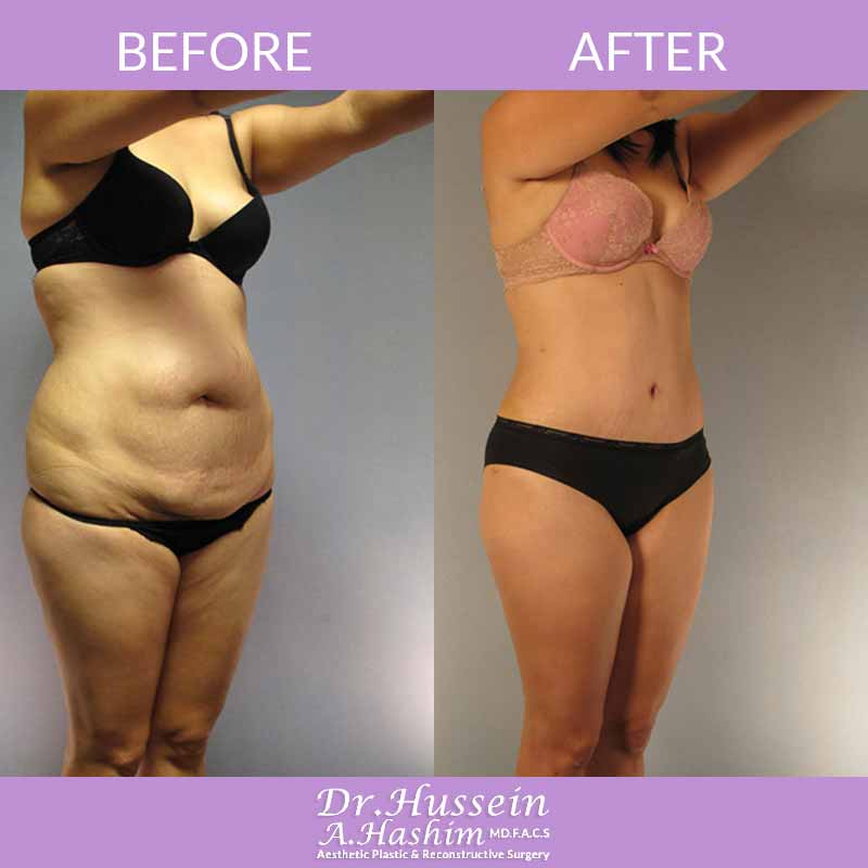 image 2 Before after of body contouring Lebanon
