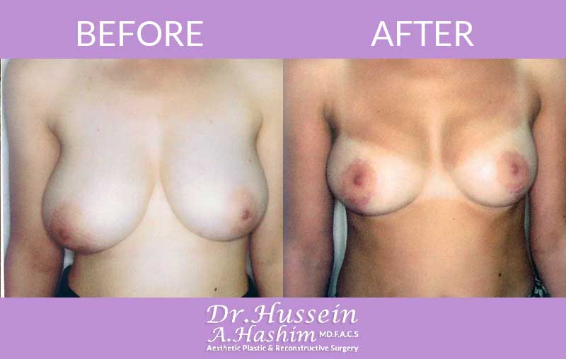 image 1 Before after of breast lift Lebanon
