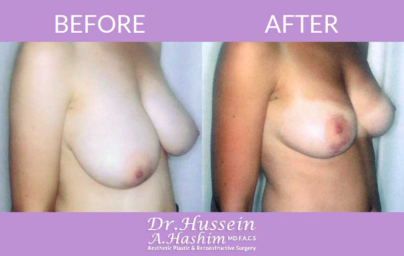 image 2 Before after of breast lift Lebanon