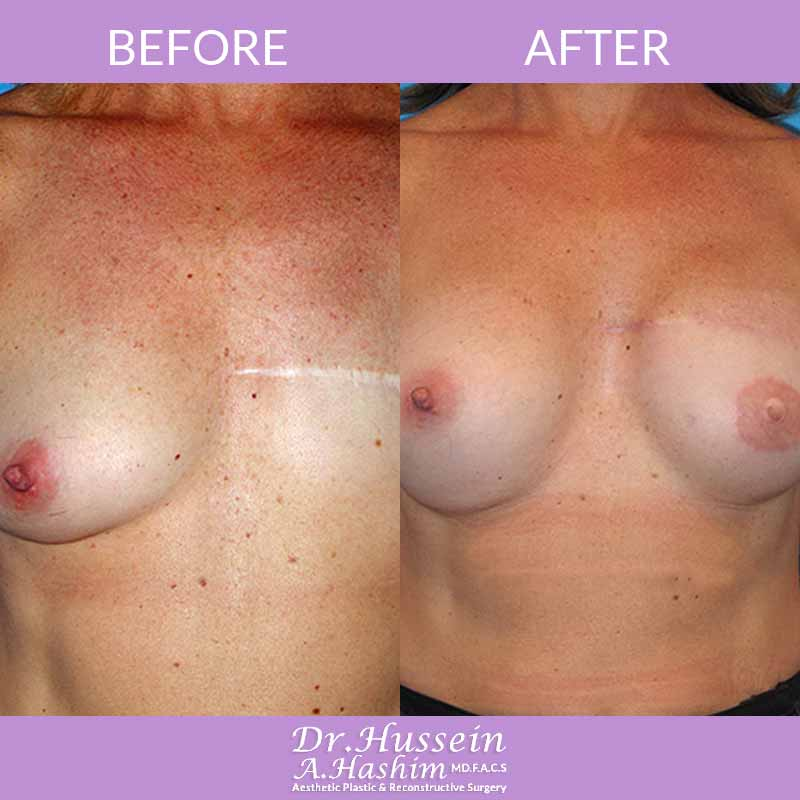 image 1 Before after of breast reconstruction Lebanon