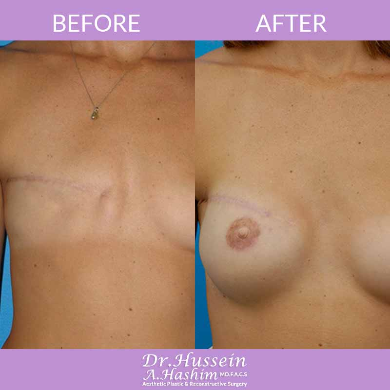 image 2 Before after of breast reconstruction Lebanon