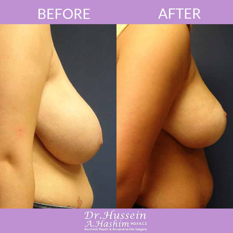 image 2 Before after of breast reduction Lebanon