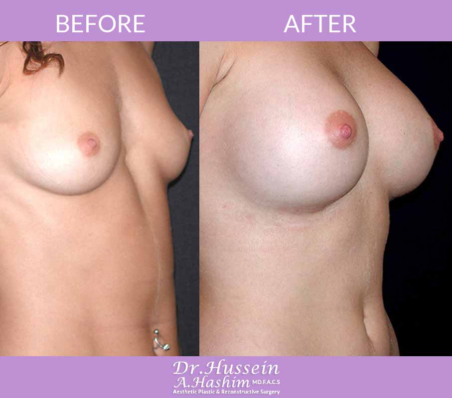 image 3 Before after of breast augmentation Lebanon