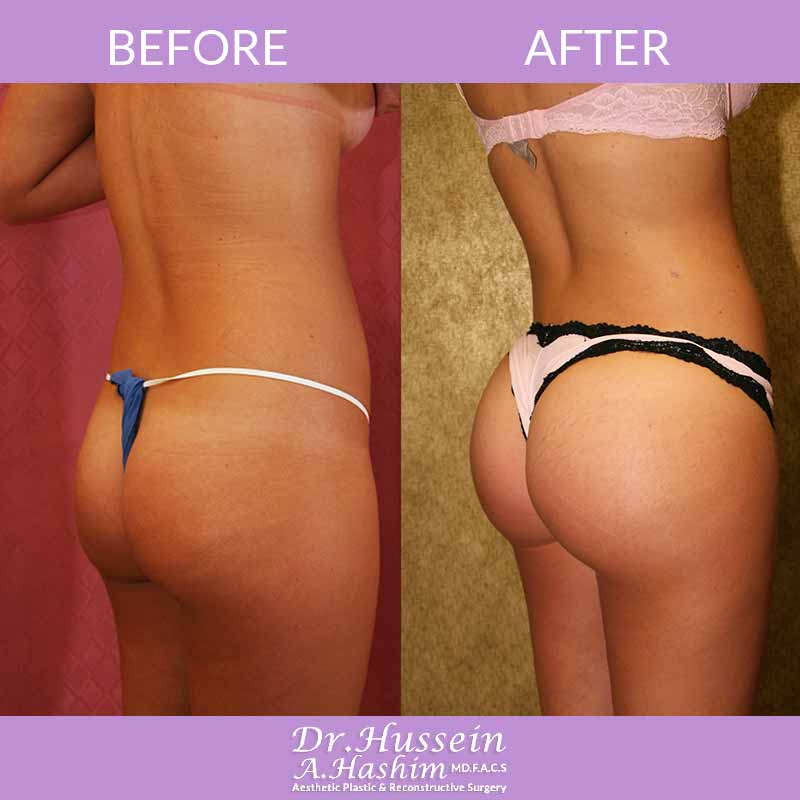 image 1 Before after of Buttock augmentation Lebanon