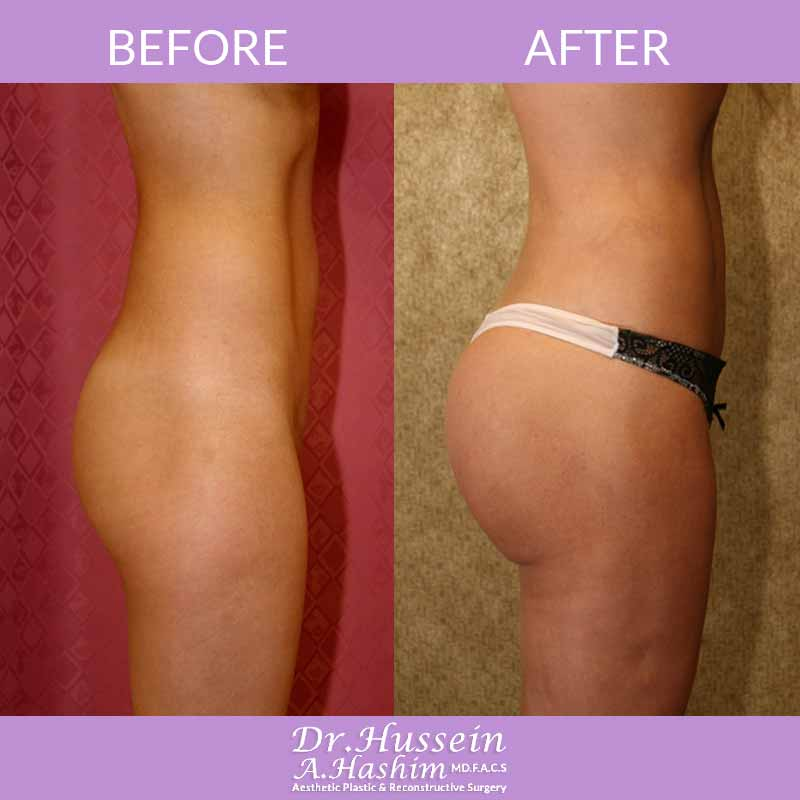 image 2 Before after of Buttock augmentation Lebanon