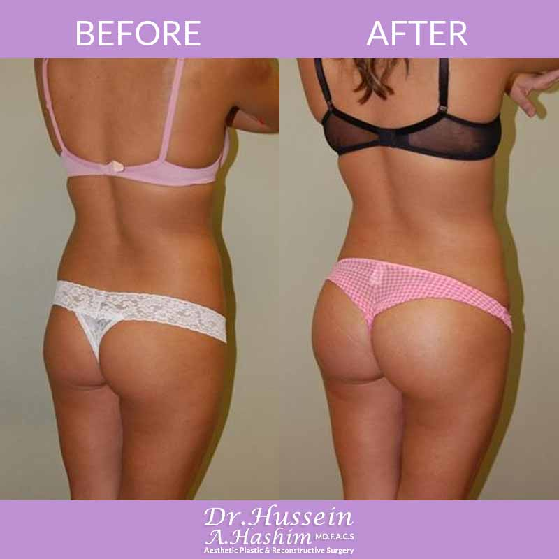 image 3 Before after of Buttock augmentation Lebanon