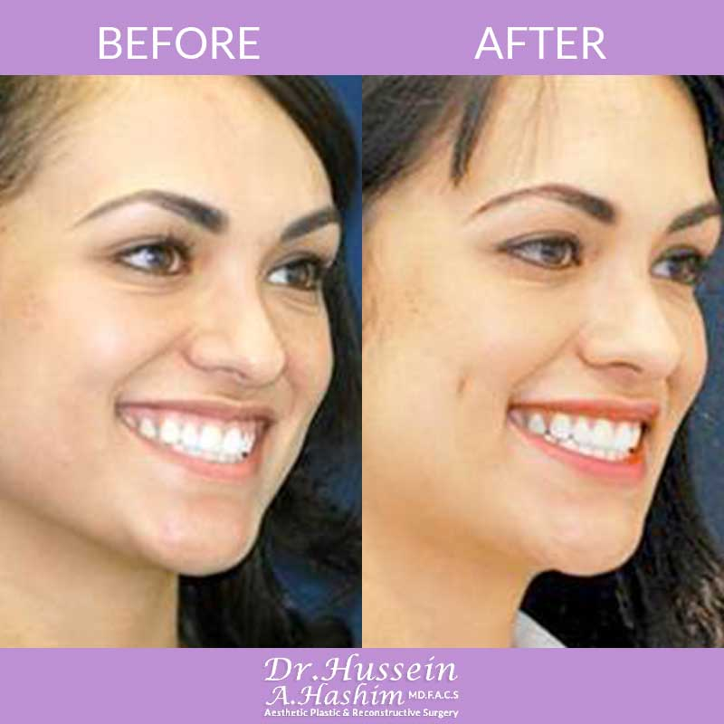 image 1 Before after of Dimple creation Lebanon