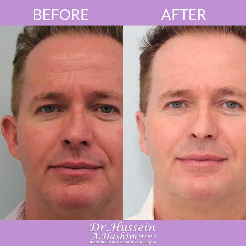 image 3 before after ear surgery Lebanon