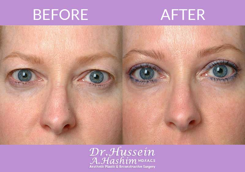 image 4 Before after of eye lift Lebanon
