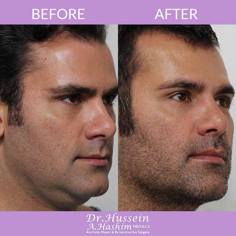 image 3 Before after of Facial liposculpture Lebanon