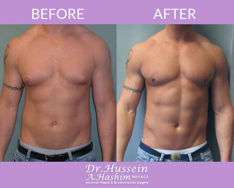 image 4 Before after of Gynecomastia Lebanon