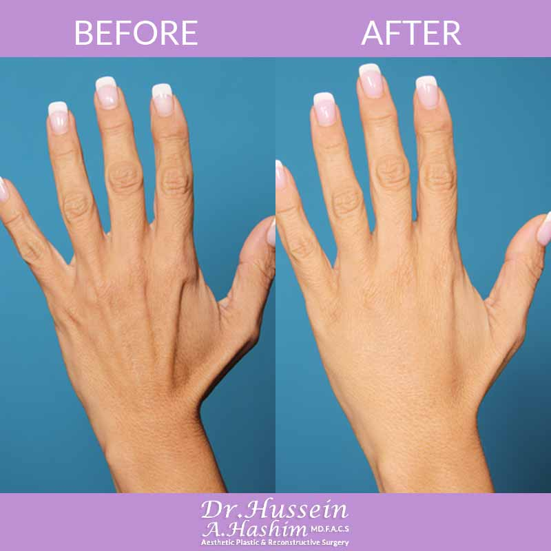 image 1 Before after of hand rejuvenation Lebanon