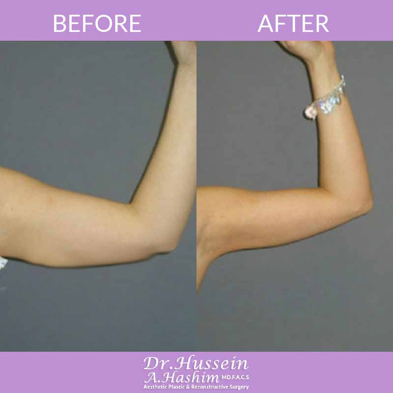 image 4 Before after of Liposculpture Lebanon