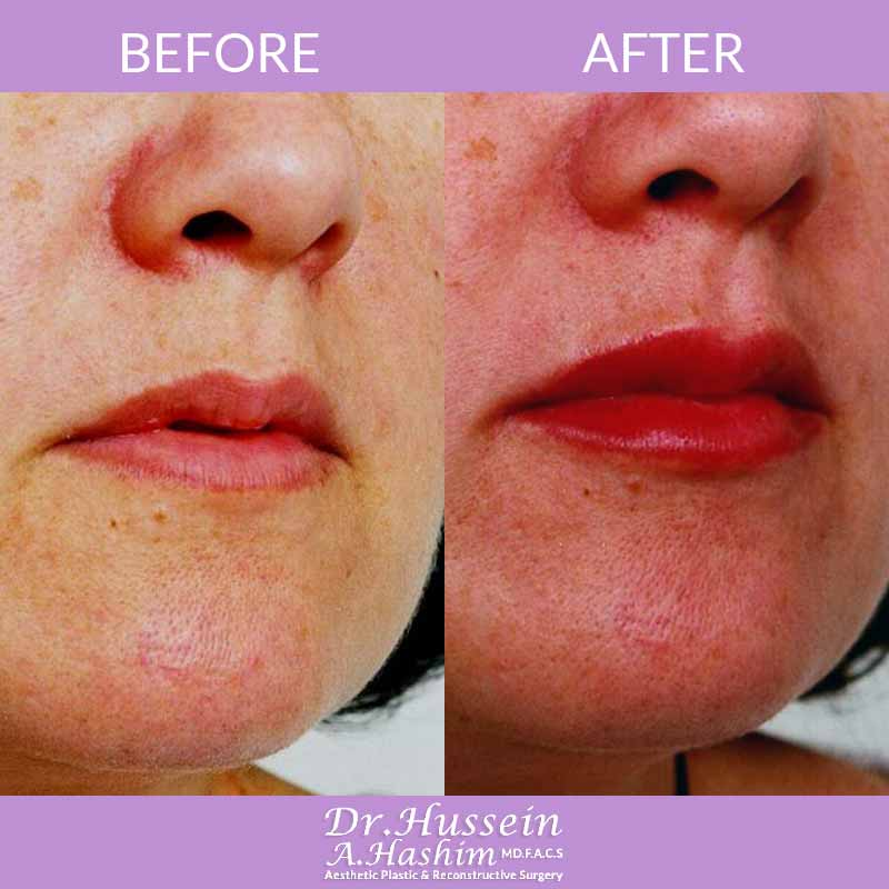 image 2 Before after of lip augmentation Lebanon