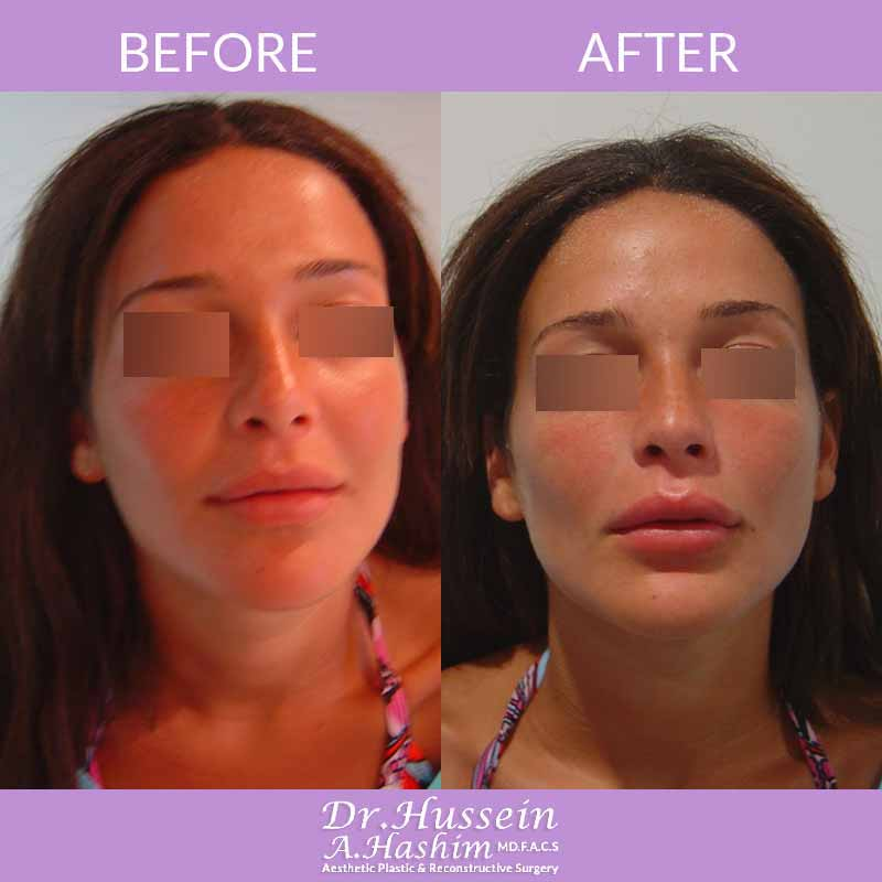 image 1 Before after of lip augmentation Lebanon