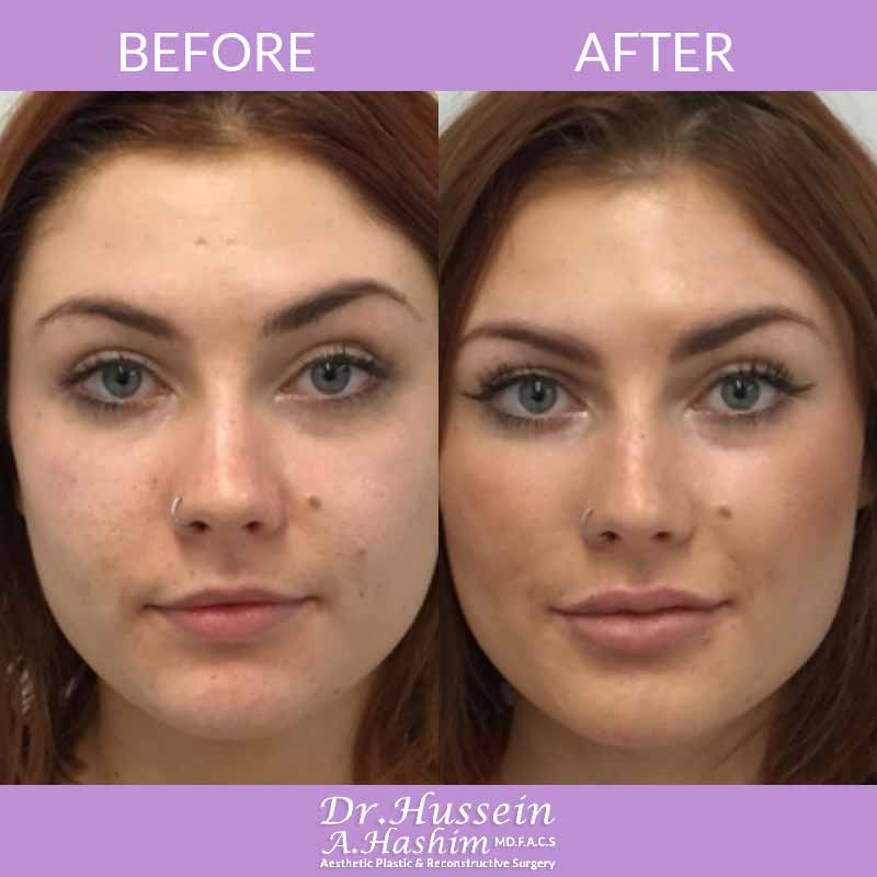 image 3 Before after of lip augmentation Lebanon