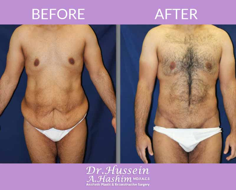 image 4 Before after of male abdominoplasty Lebanon