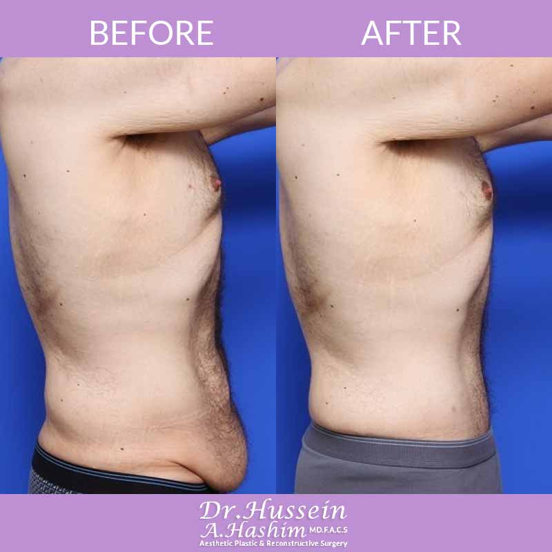 image 3 Before after of male abdominoplasty Lebanon