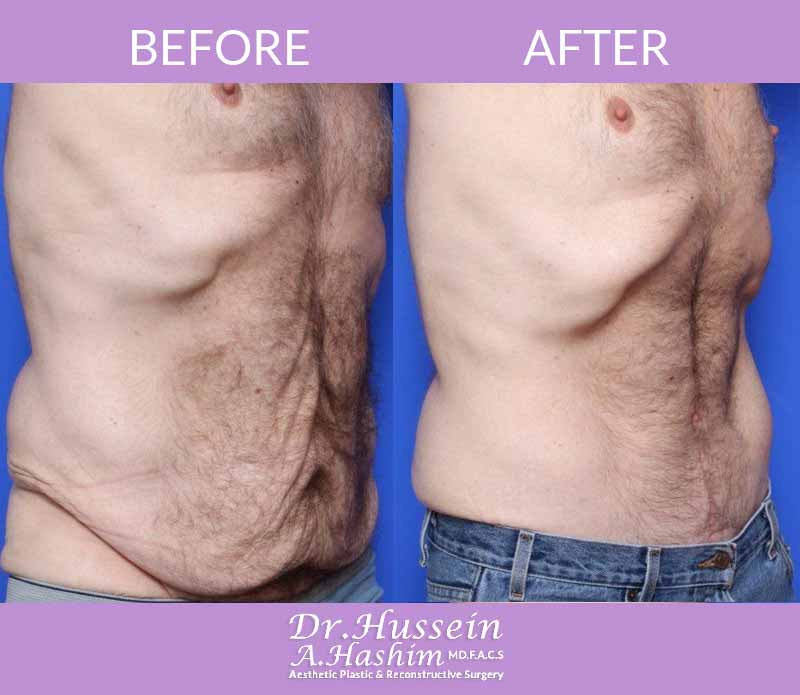 image 1 Before after of male abdominoplasty Lebanon