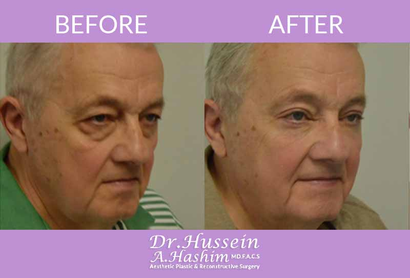 image 6 Before after of eye lift Lebanon