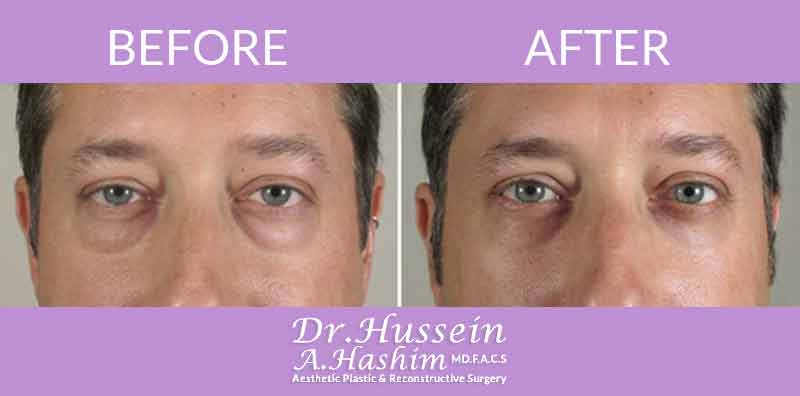 image 8 Before after of eye lift Lebanon