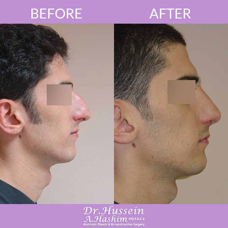 image 2 Before after of nose reshaping or nasoplasty lebanon