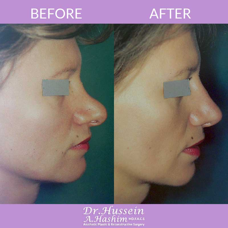 image1 Before after of nose reshaping or nasoplasty Lebanon