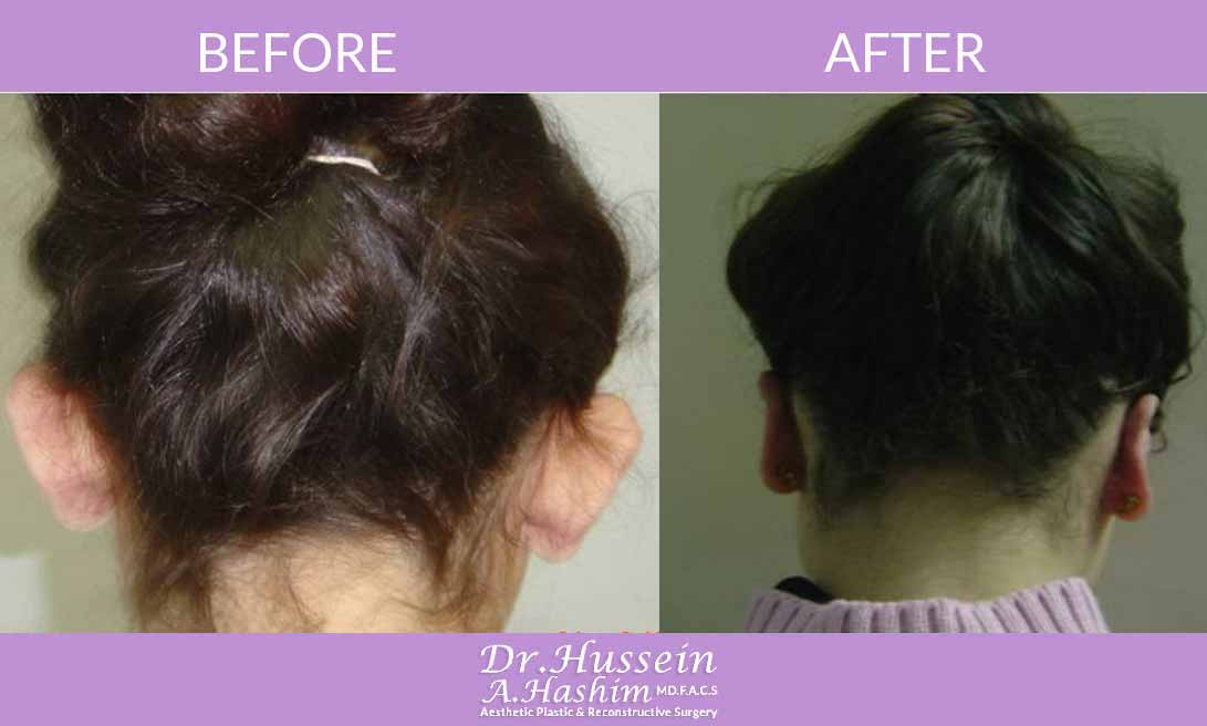 image 4 before after ear surgery Lebanon