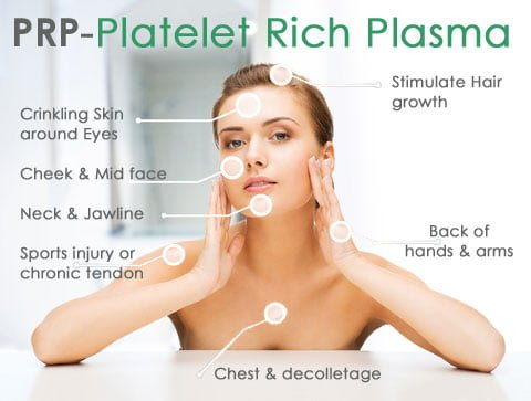 Benefits of PRP Lebanon