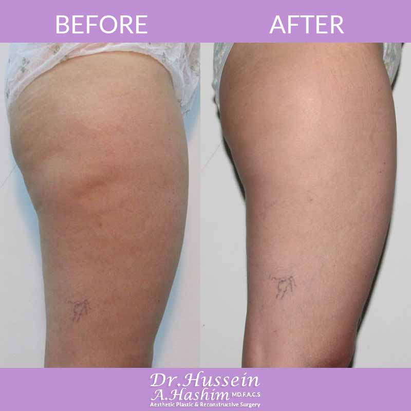 image 2 Before after of skin tightening Lebanon