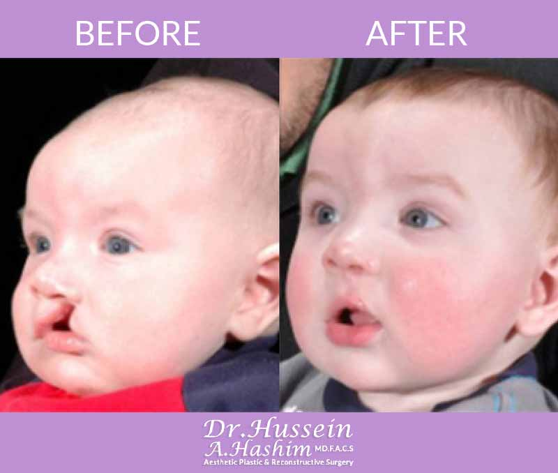 image 1 Before after of cleft lip surgery Lebanon
