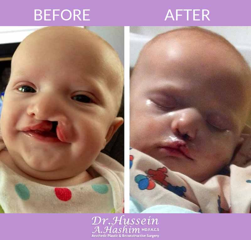 image 3 Before after of cleft lip surgery Lebanon