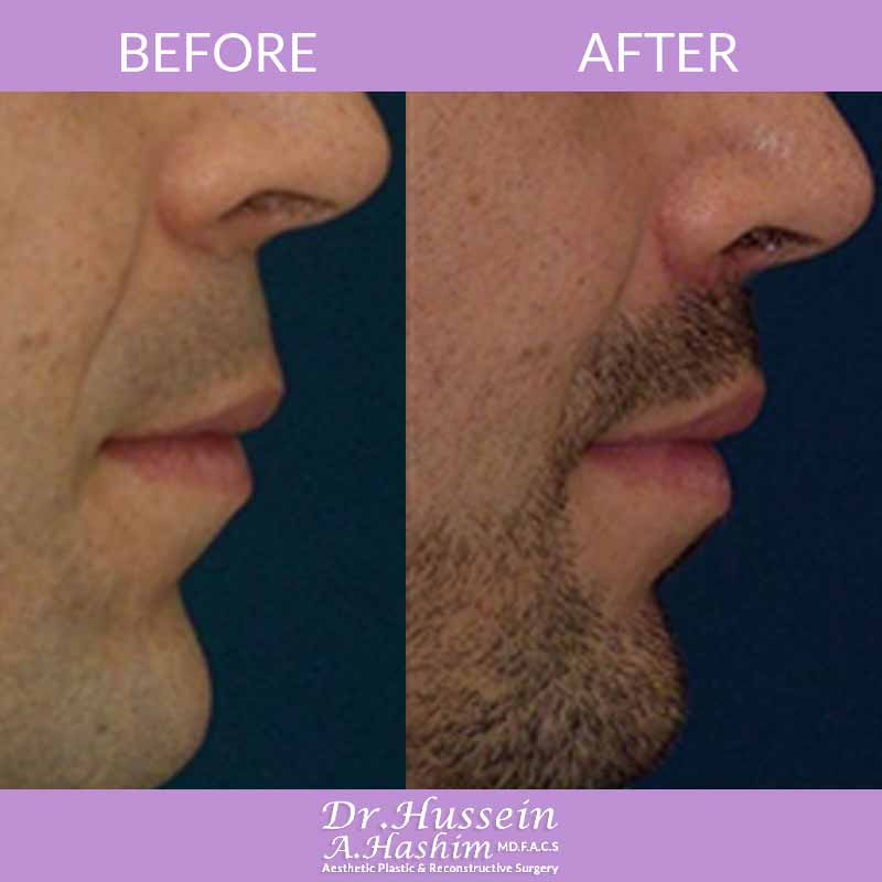 image 4 Before after of Lip lift lebanon