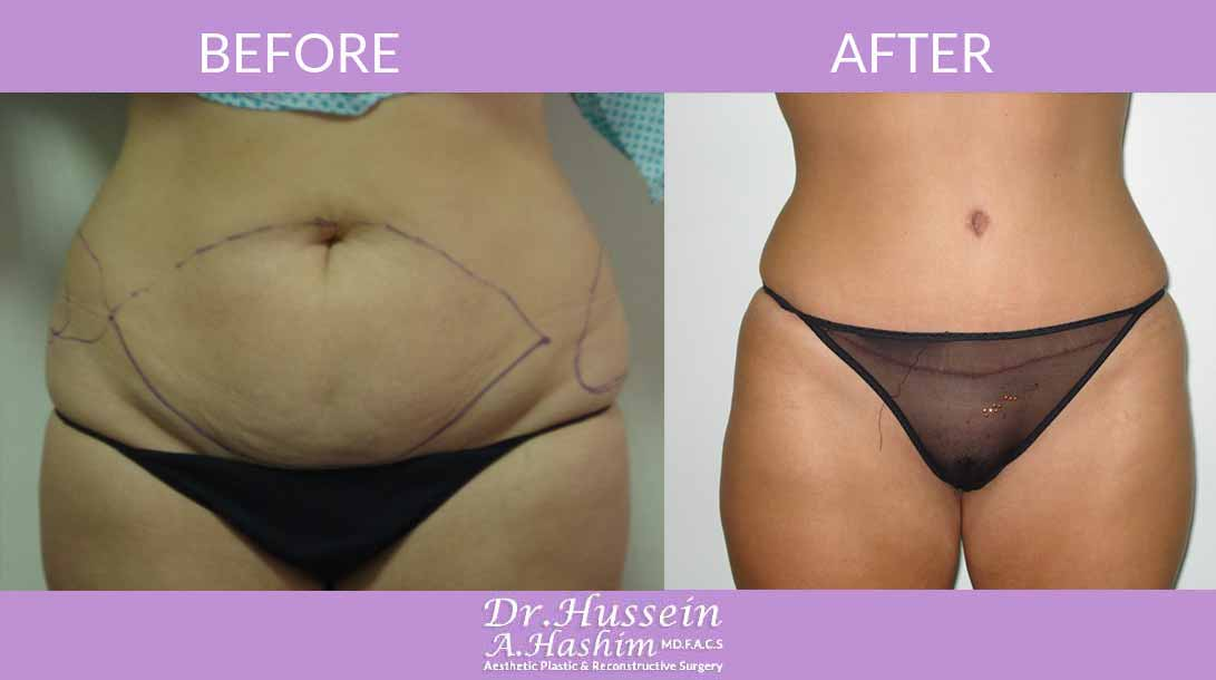 image 1 Before after of abdominoplasty Lebanon