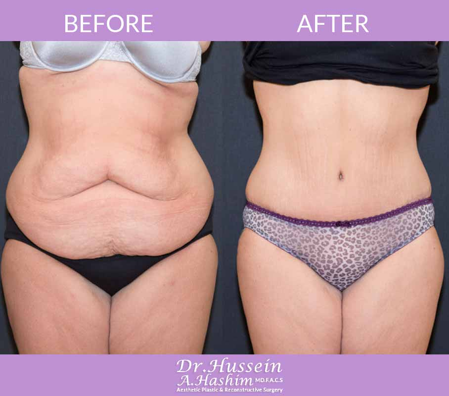 image 2 Before after of abdominoplasty Lebanon
