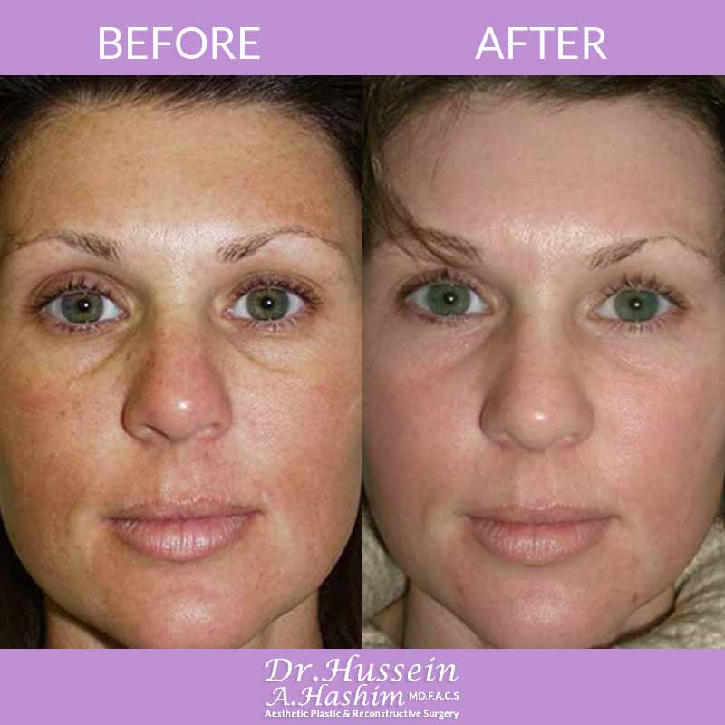 image 1 Before after of Facial Beautification Lebanon