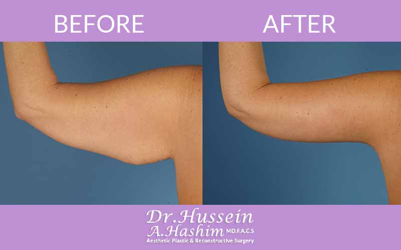 image 2 Before after of arm lift Lebanon