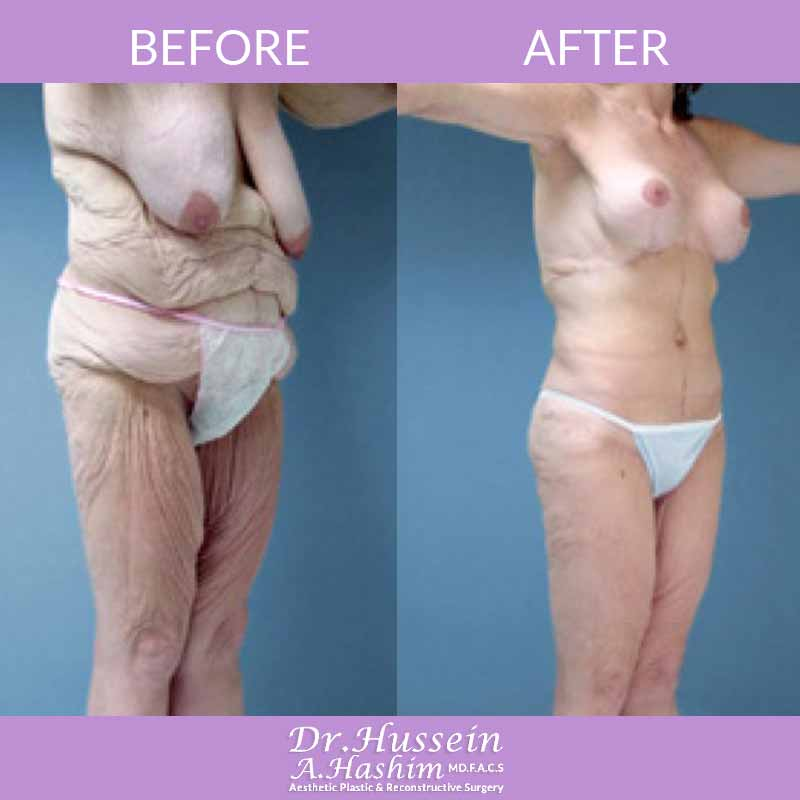 image 1 Before after of body contouring Lebanon