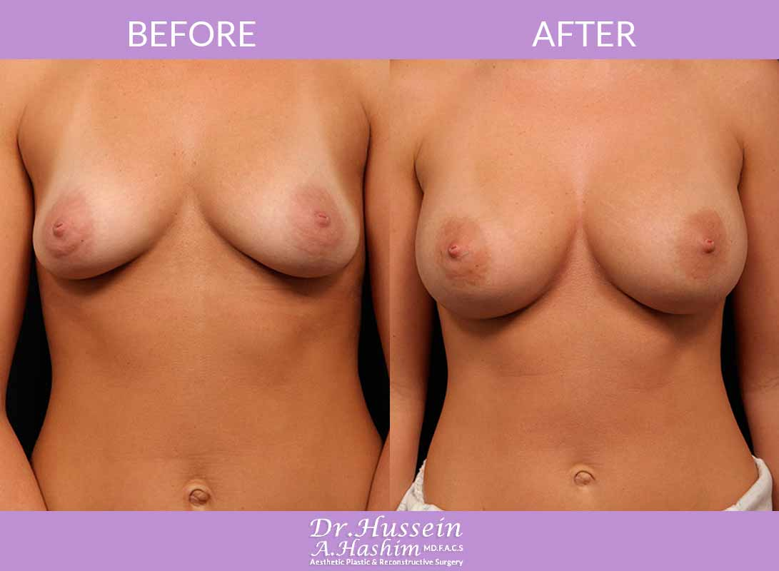 image 2 Before after of breast augmentation Lebanon