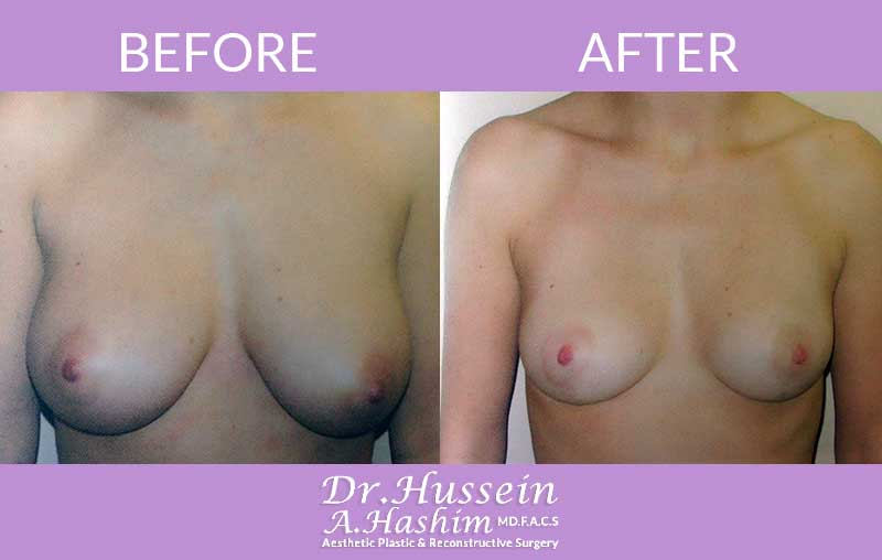 image 3 Before after of breast lift Lebanon
