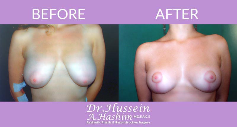 image 4 Before after of breast lift Lebanon