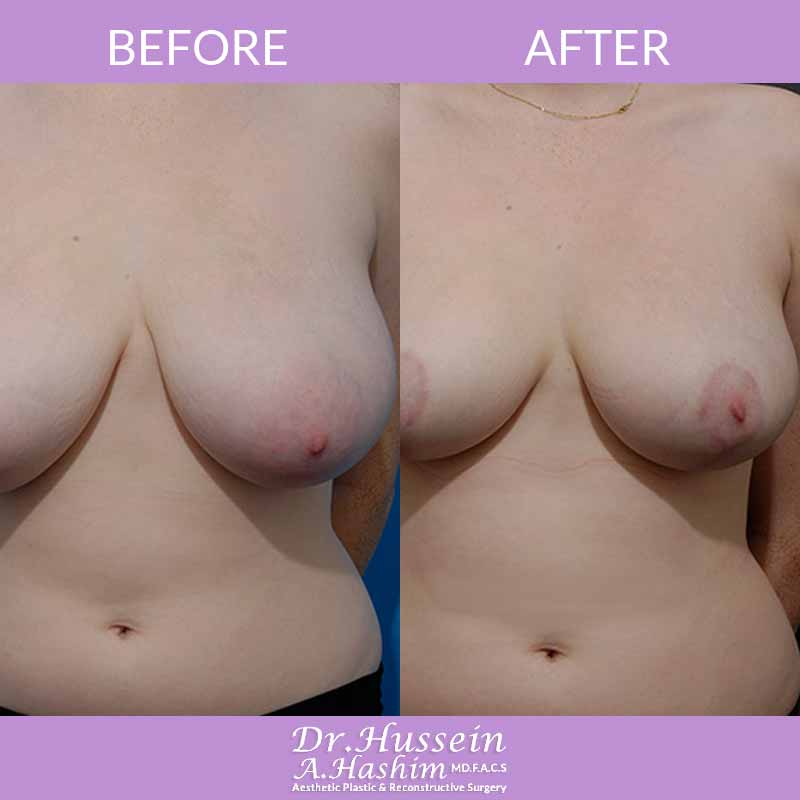 image 3 Before after of breast reduction Lebanon