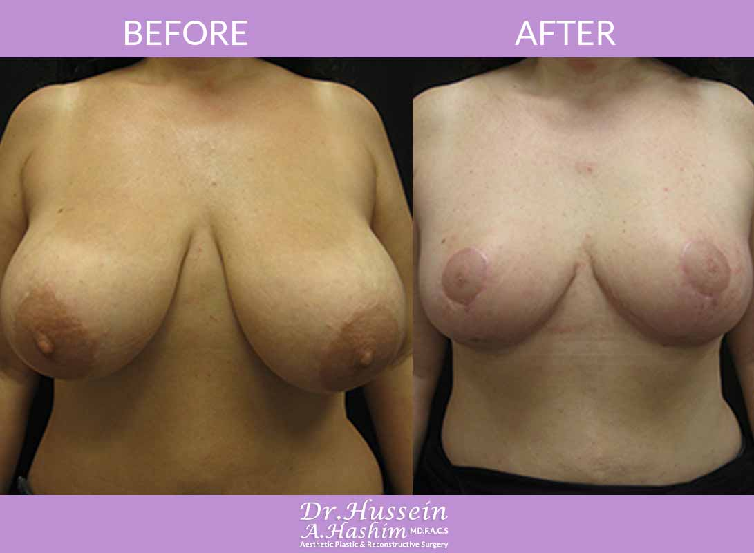 image 1 Before after of breast reduction Lebanon