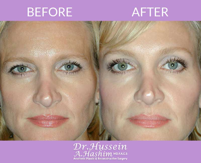image 2 Before after of brow lift Lebanon