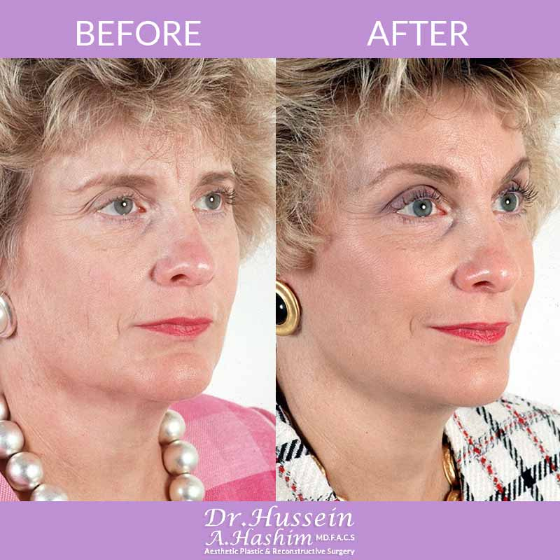 image 1 Before after of brow lift Lebanon