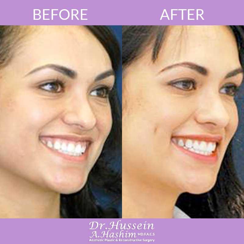 dimple creation lebanon  u2022 dimpleplasty  u2022 dr  hussein hashim